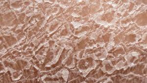 schilferige-huid
